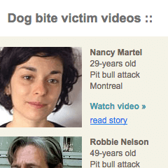 Dog Bite Victim Videos